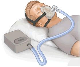CPAP Diagram